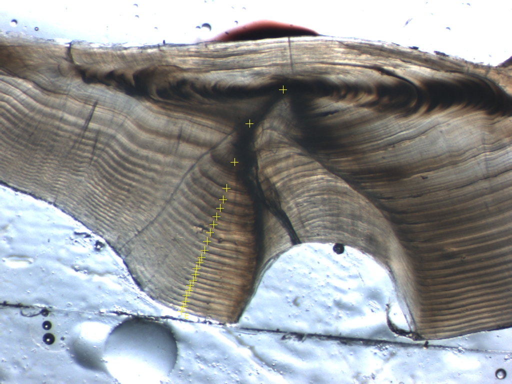 Yellow plus signs mark growth lines on this fish otolith, or ear bone; in this case the fish is 21 years old.